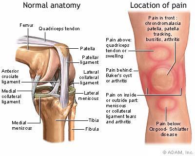Penyakit arthritis disebabkan oleh